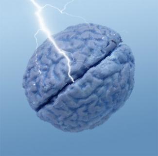 cerveau-epilepsie